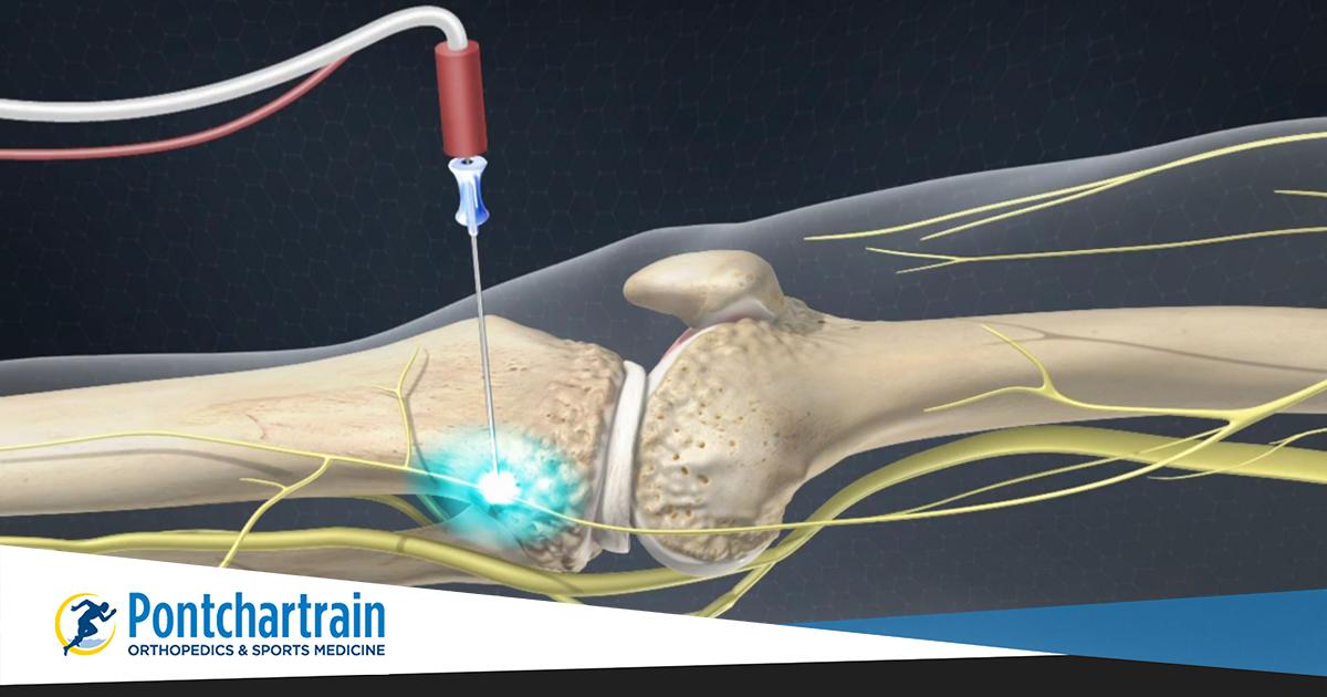 RFA for chronic knee pain